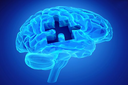 what is neurofeedback