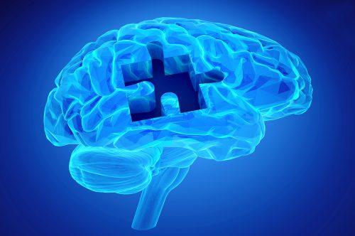 what is neurofeedback